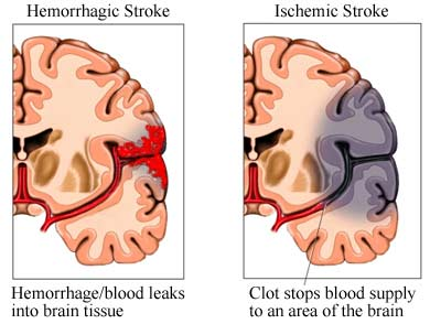 What is a stroke, and what are its warning signs? This isn't common ...