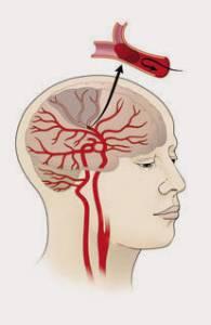 20160217-ischemic-stroke