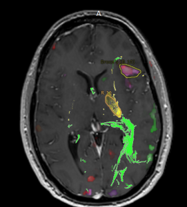 axial fmri and dti