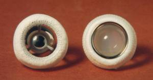 Image of two Starr-Edwards ball-and-cage style artificial heart valves set on an orange-red background. The valve on the left has a metal ball, while the valve on the right has a white plastic ball. Both balls are enclosed in white mesh cloth-covered cages.
