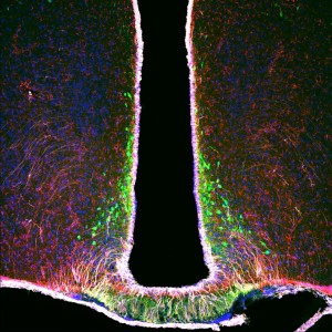 Confocal microscopy image of the medial basal hypothalamus