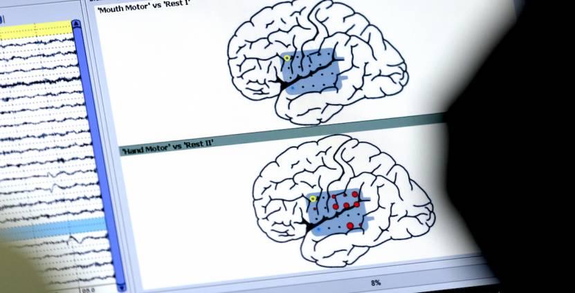 OHSU performs 40 to 50 awake craniotomies with language mapping annually.